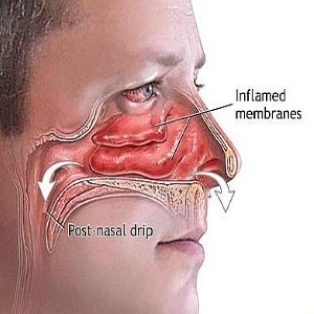 Top Naturliche Heilmittel Fur Sinus Congestion You Can Make