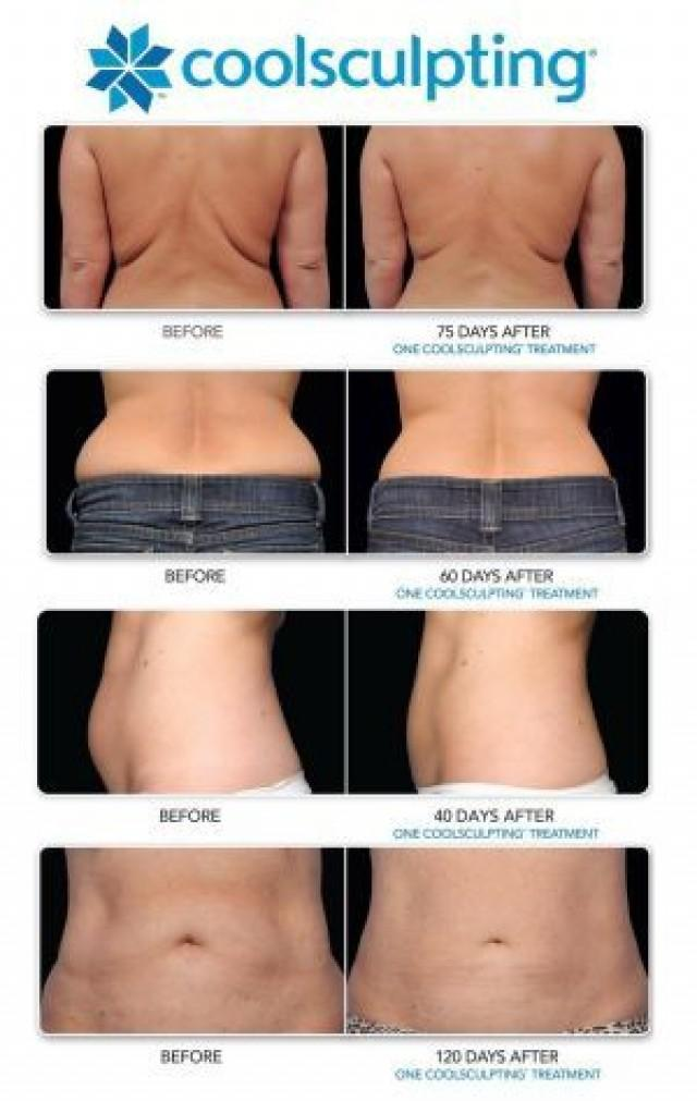 Health And Beauty - How Much Does Coolsculpting Cost ...